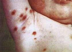 Hautarzt Dr Schnicke Publikationen Stiche